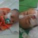 Yuk Bantu Dek Miftahul Jannah Yang Menderita Omphalocele